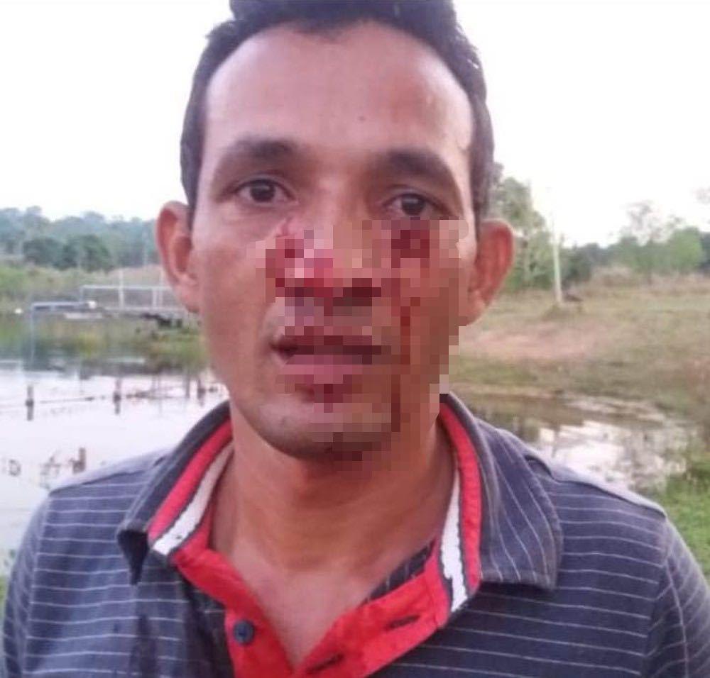 Moisés Rodrigues foi atacado no rosto por sucuri de 3 metros