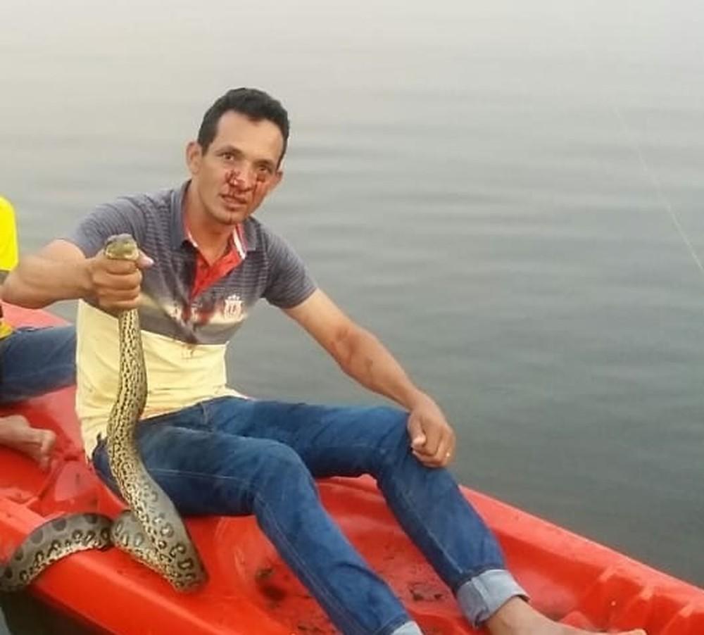 Empresário estava pescando quando foi atacado pela cobra