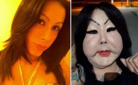 Juju Oliveira antes e depois do procedimento