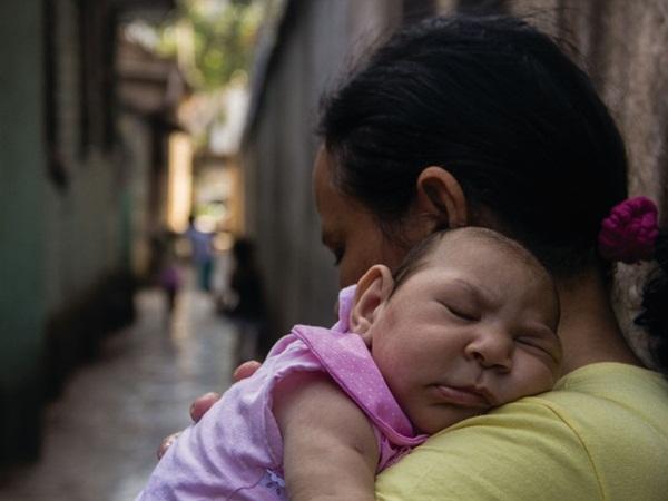 Resultado de imagem para Crianças com microcefalia podem receber pensão vitalícia