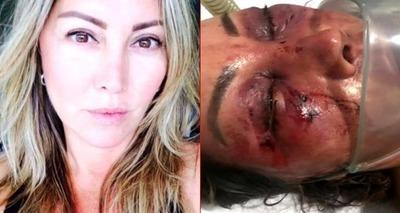 Thumb mulher espancada por 4 horas