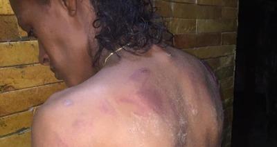 Thumb mulher agredida com fac o