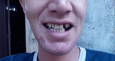 Thumb dentes