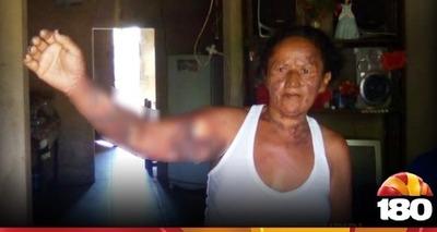 Thumb mulher piripiri