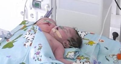 Thumb screenshot 2020 07 03 beb nasce com duas cabe as e m e obrigada pelo sogro a abandon  lo
