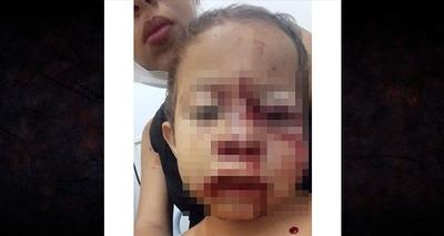Thumb crian a ferida no rosto
